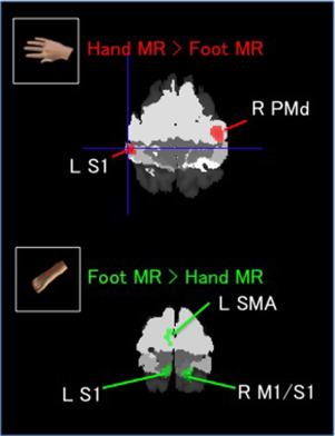 Somatotopically arranged brain activity during mental rotation (MR) of hands and ...