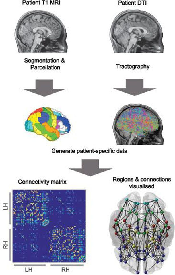 Computer modelling techniques are being used to look at the brain as an example of a computer network
