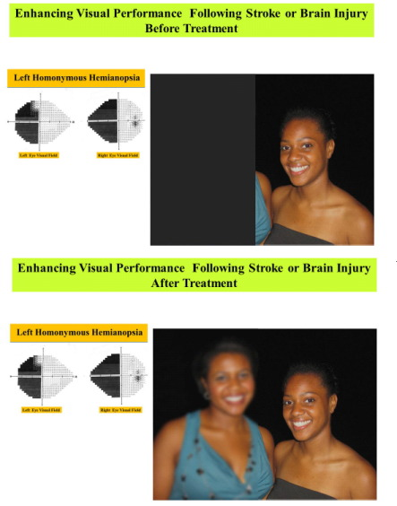 [ARTICLE] Enhancing Visual Performance in Individuals with ...