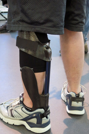 Web Page Orthotic Brace Takes Soldiers From Limping To