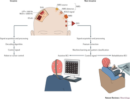 General framework of brain-computer interface (BCI) systems.