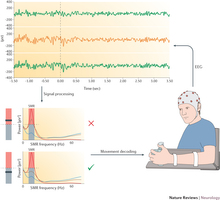 Use of a brain-computer interface in severe chronic stroke.