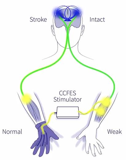 post-stroke-rehab