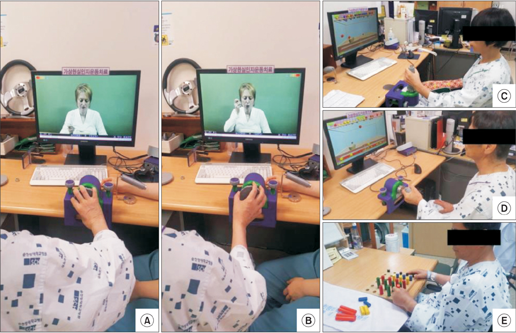[ARTICLE] Can Short-Term Constraint-Induced Movement Therapy Combined With Visual Biofeedback Training Improve Hemiplegic Upper Limb Function of Subacute Stroke Patients? – Full Text